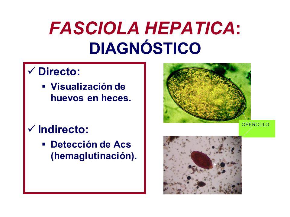 FASCIOLA HEPATICA: DIAGNÓSTICO