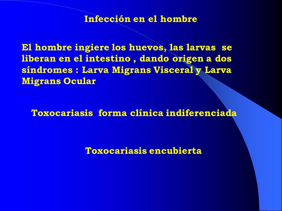 Infección en el hombre