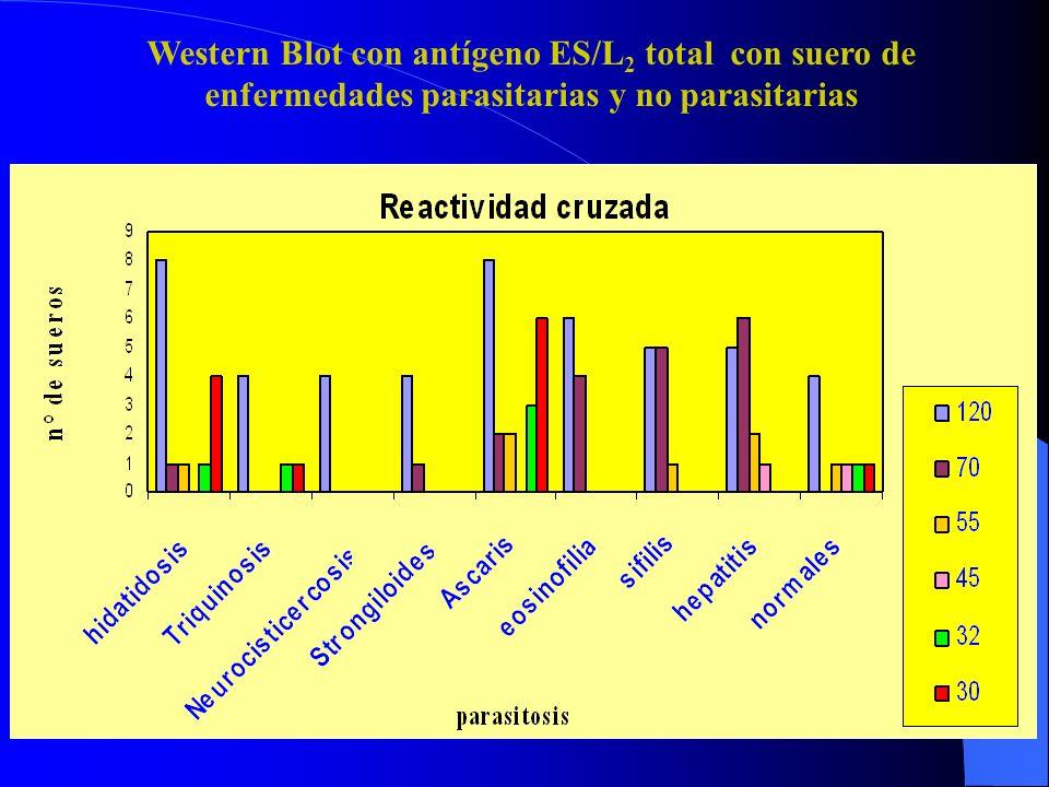 Western Blot con antígeno ES/L2 total con suero de enfermedades parasitarias y no parasitarias