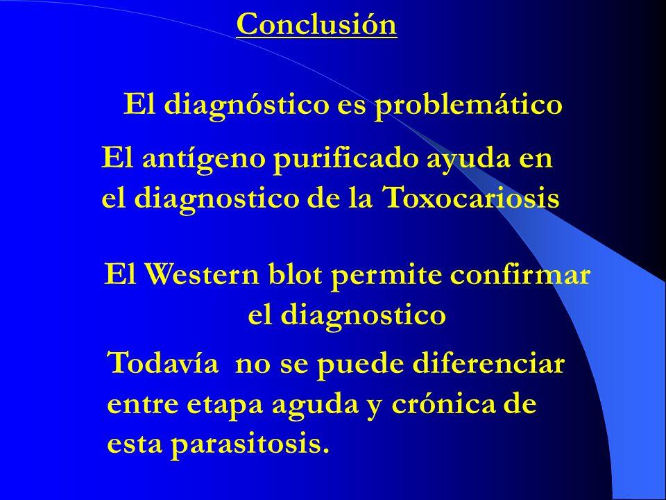 El Western blot permite confirmar el diagnostico