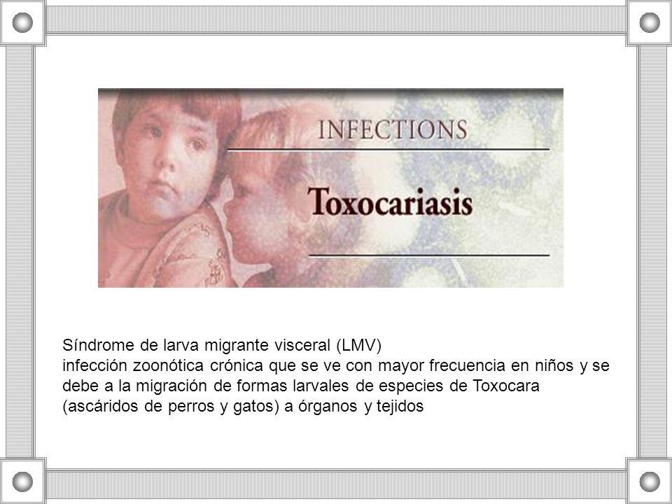Síndrome de larva migrante visceral (LMV)