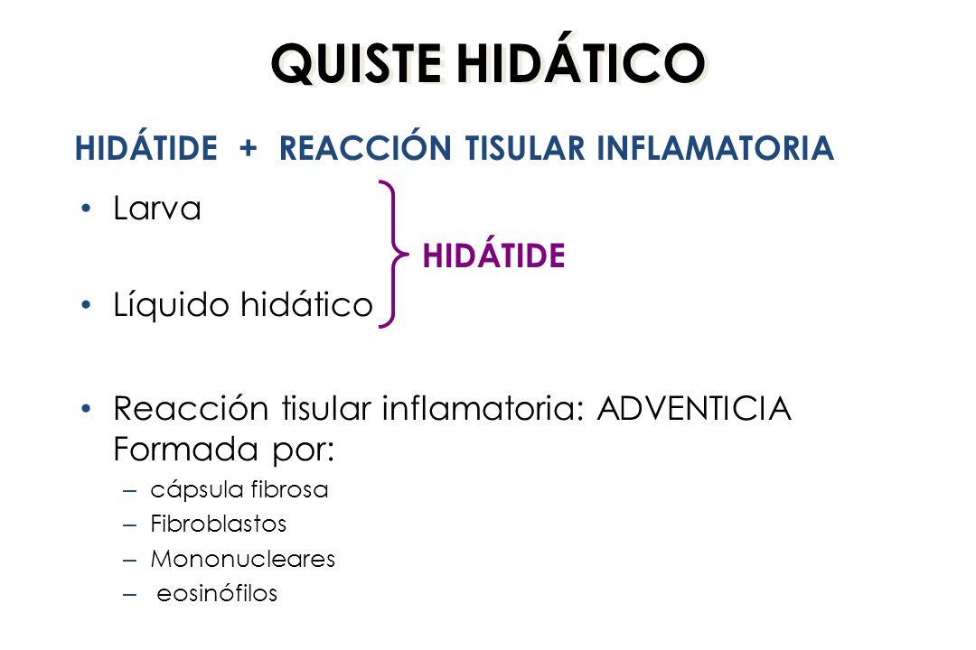 QUISTE HIDÁTICO HIDÁTIDE + REACCIÓN TISULAR INFLAMATORIA Larva