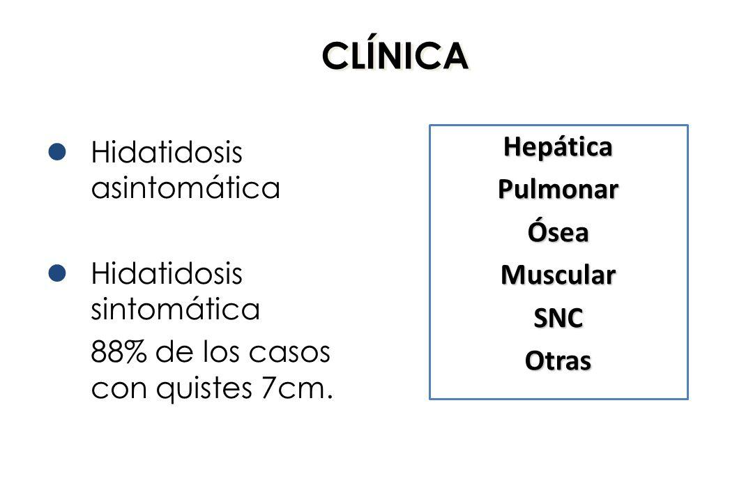 CLÍNICA Hepática Hidatidosis asintomática Pulmonar Ósea