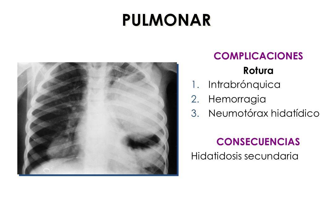 PULMONAR COMPLICACIONES Rotura Intrabrónquica Hemorragia