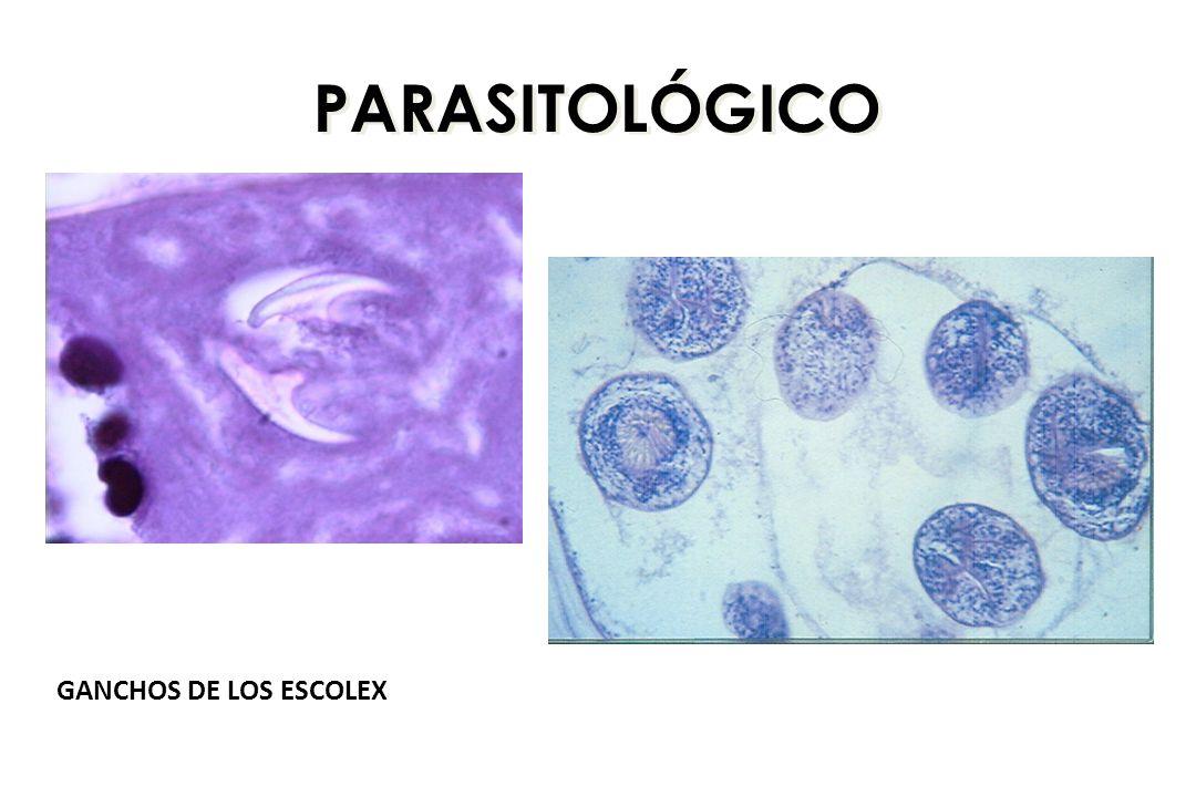 PARASITOLÓGICO GANCHOS DE LOS ESCOLEX