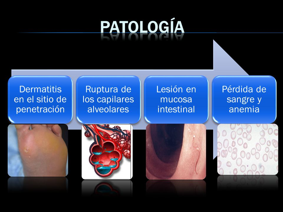 Patología Dermatitis en el sitio de penetración