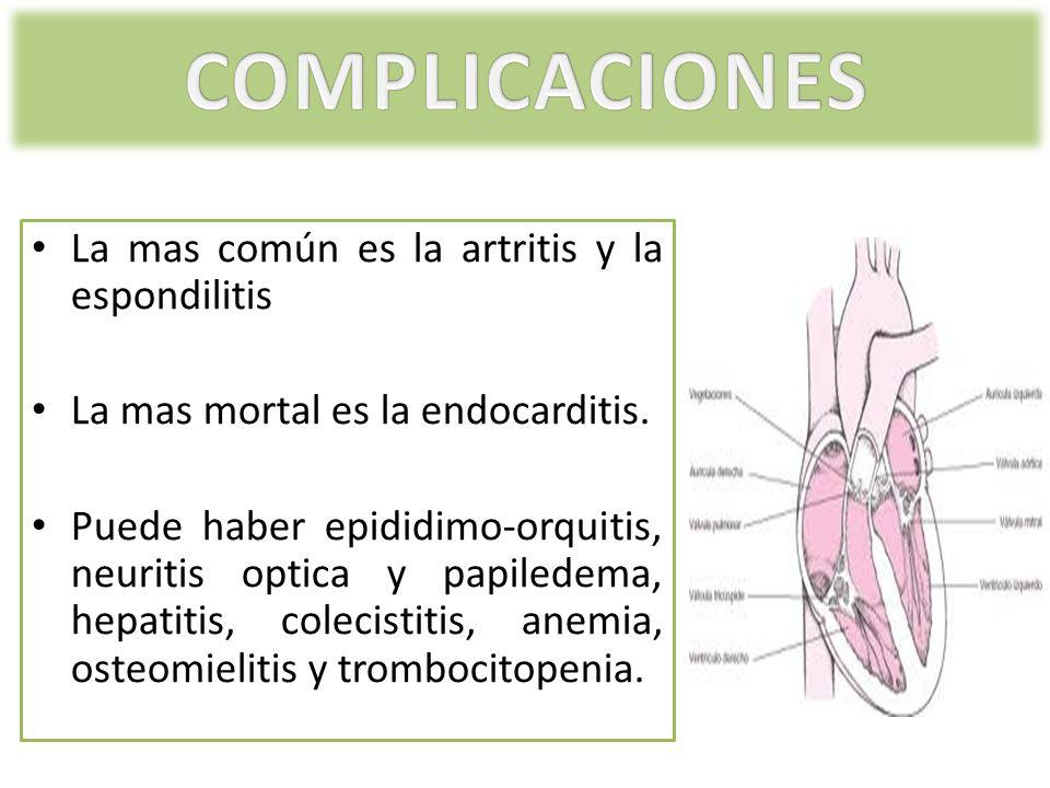 COMPLICACIONES La mas común es la artritis y la espondilitis