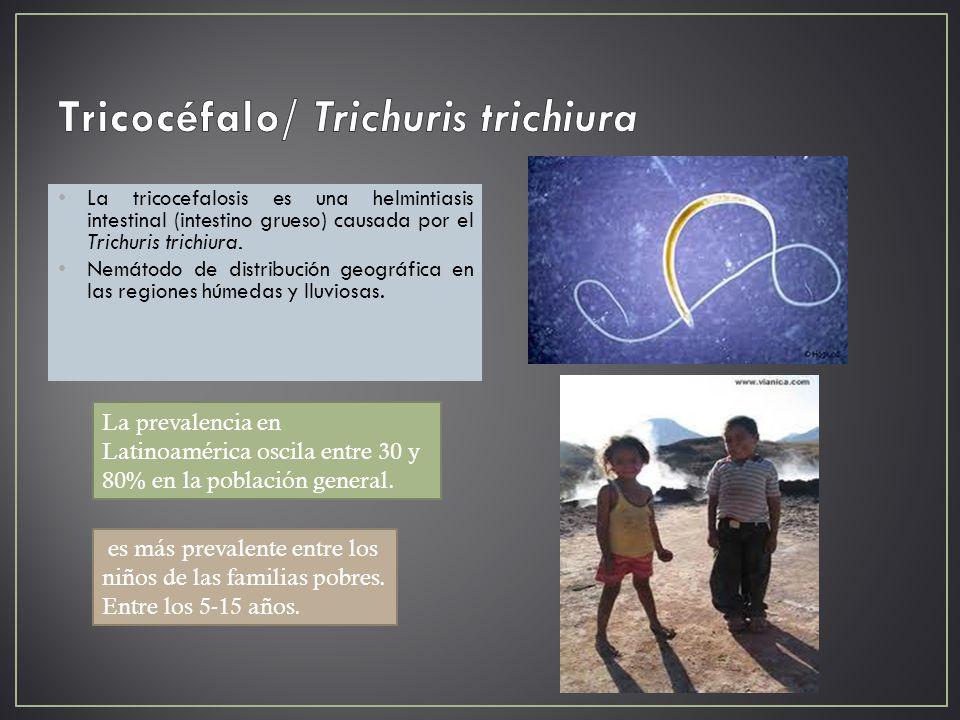 Tricocéfalo/ Trichuris trichiura
