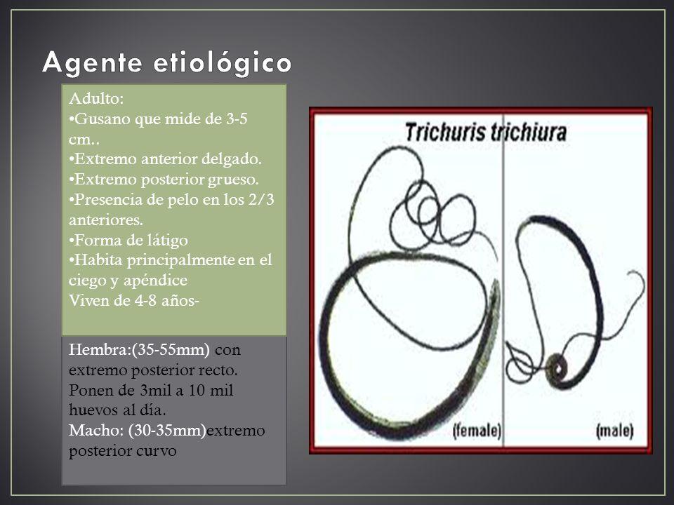 Agente etiológico Adulto: Gusano que mide de 3-5 cm..