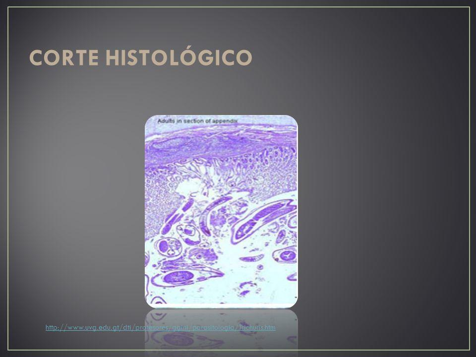 CORTE HISTOLÓGICO http://www.uvg.edu.gt/dti/profesores/ggini/parasitologia/Trichuris.htm
