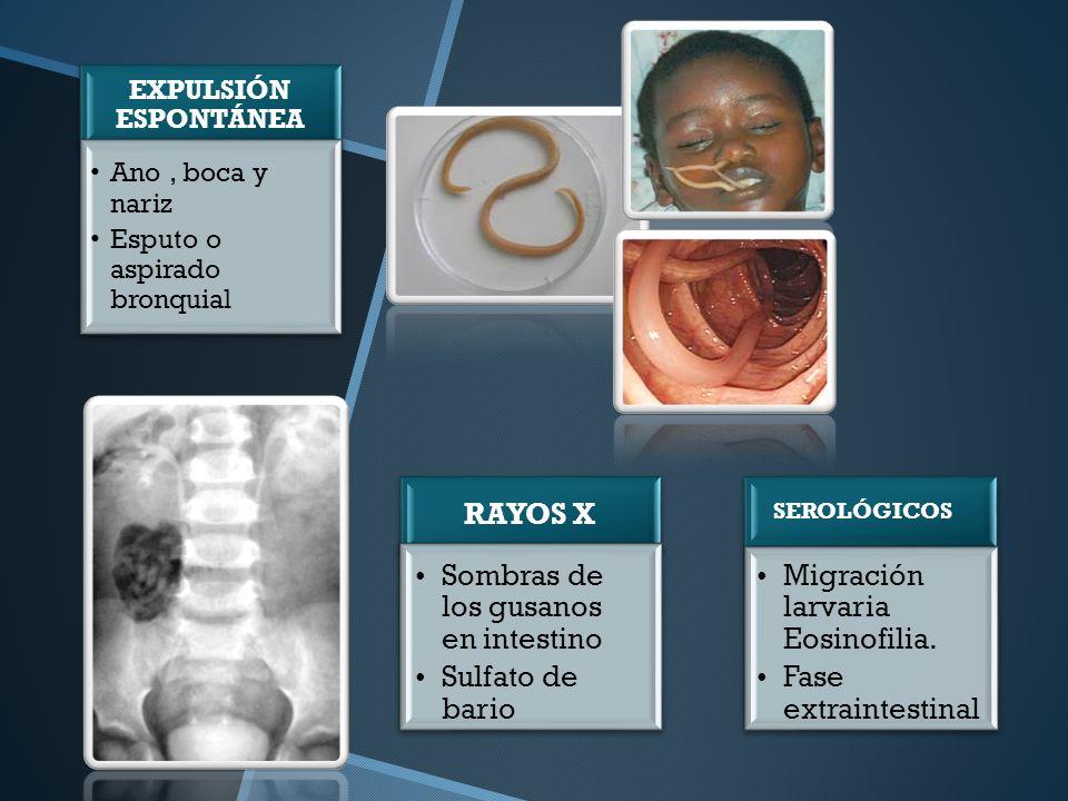 Sombras de los gusanos en intestino