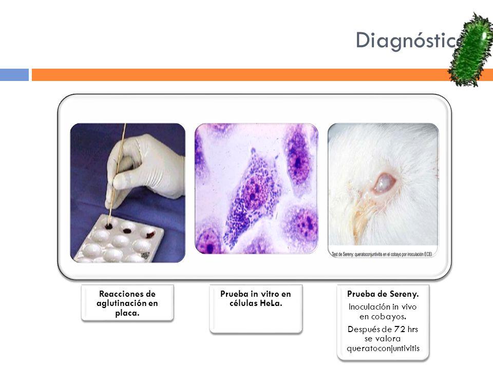 Reacciones de aglutinación en placa. Prueba in vitro en células HeLa.