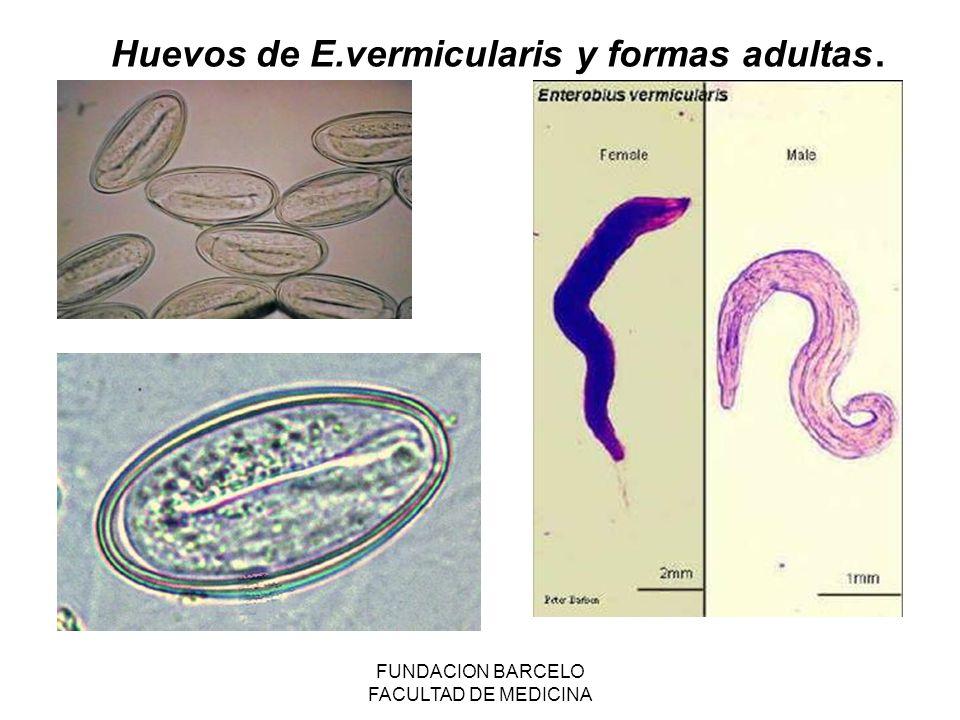 Huevos de E.vermicularis y formas adultas.