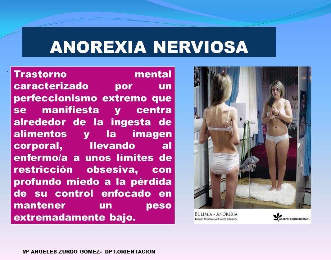 ANOREXIA NERVIOSA .