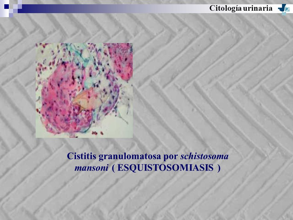 Cistitis granulomatosa por schistosoma mansoni ( ESQUISTOSOMIASIS )