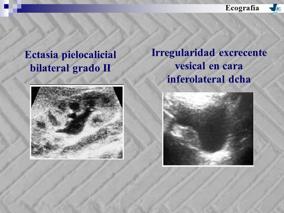 Irregularidad excrecente vesical en cara inferolateral dcha