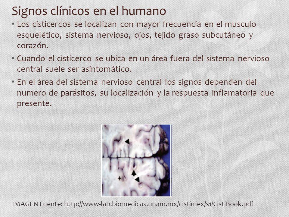 Signos clínicos en el humano