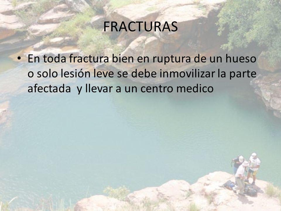 FRACTURAS En toda fractura bien en ruptura de un hueso o solo lesión leve se debe inmovilizar la parte afectada y llevar a un centro medico.