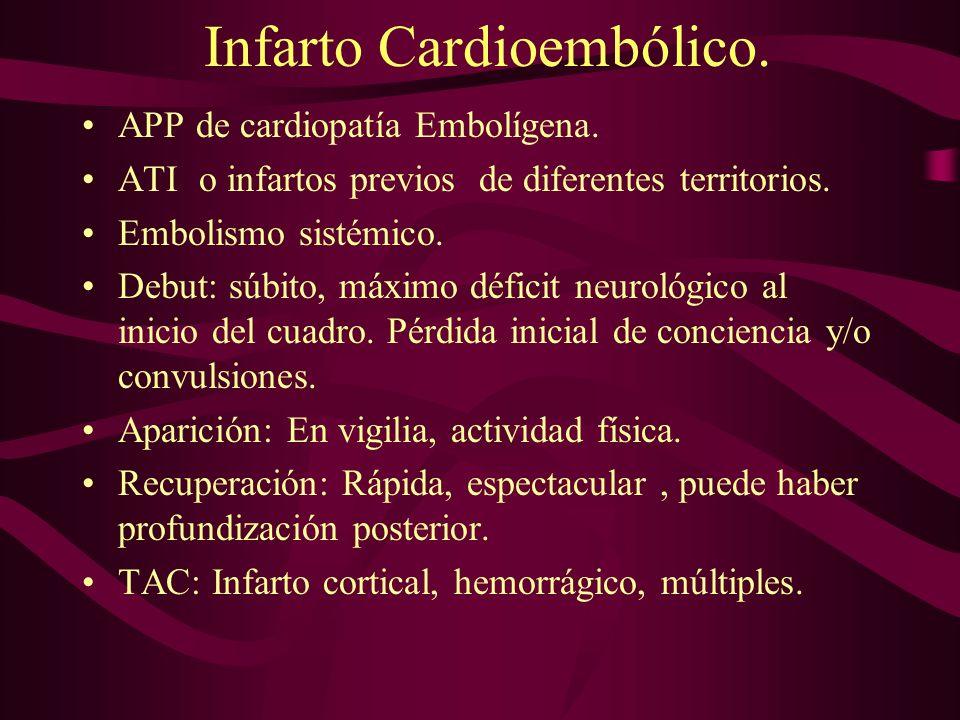 Infarto Cardioembólico.