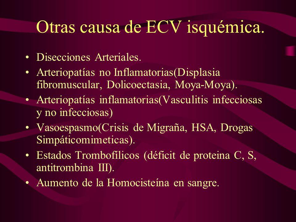 Otras causa de ECV isquémica.