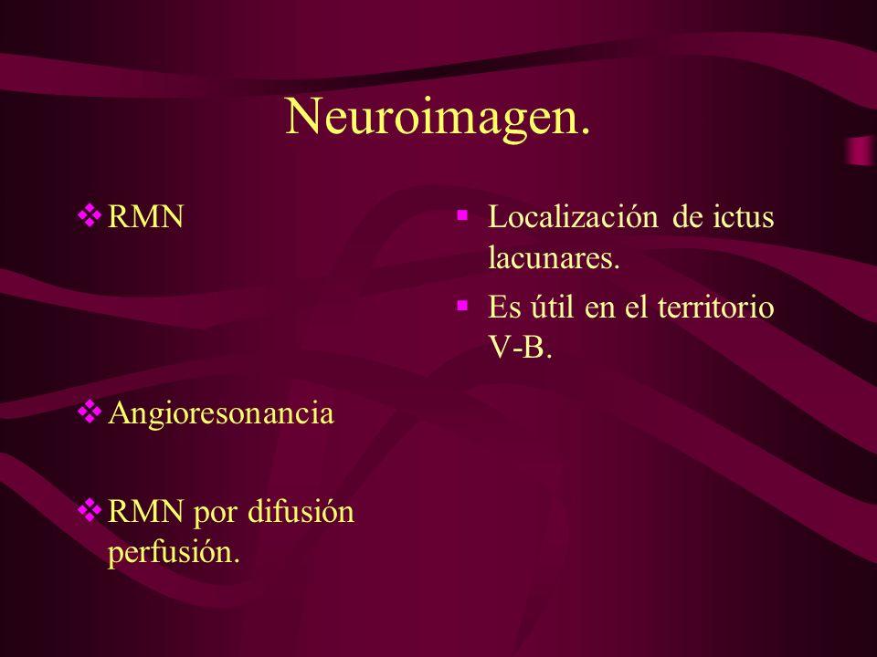 Neuroimagen. RMN Angioresonancia RMN por difusión perfusión.