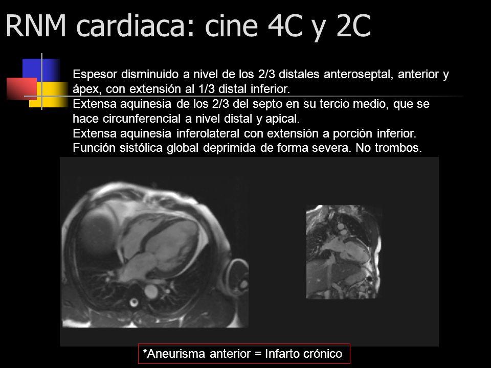 RNM cardiaca: cine 4C y 2C Espesor disminuido a nivel de los 2/3 distales anteroseptal, anterior y ápex, con extensión al 1/3 distal inferior.
