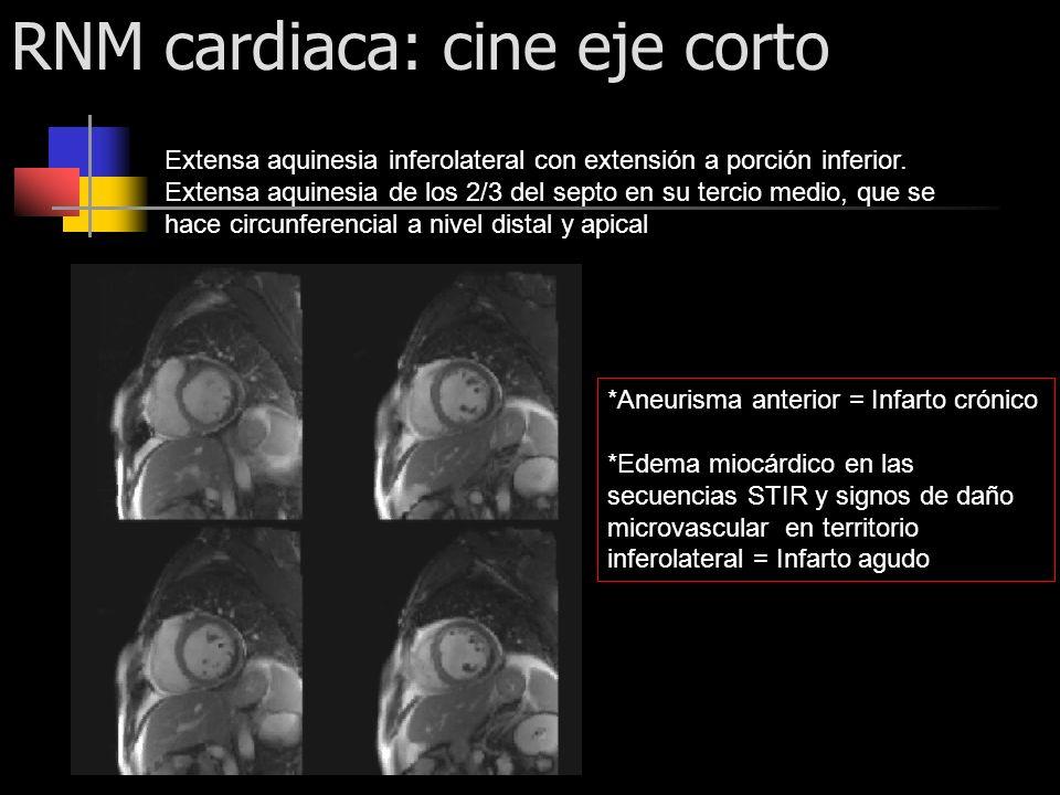 RNM cardiaca: cine eje corto