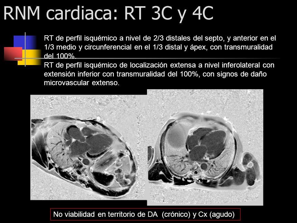 RNM cardiaca: RT 3C y 4C