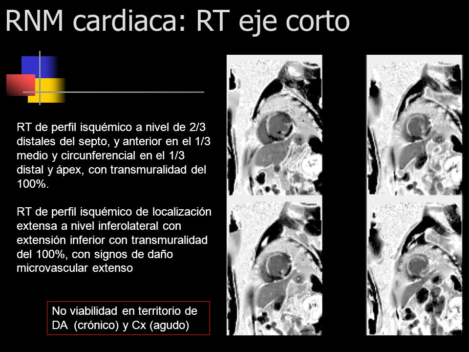RNM cardiaca: RT eje corto