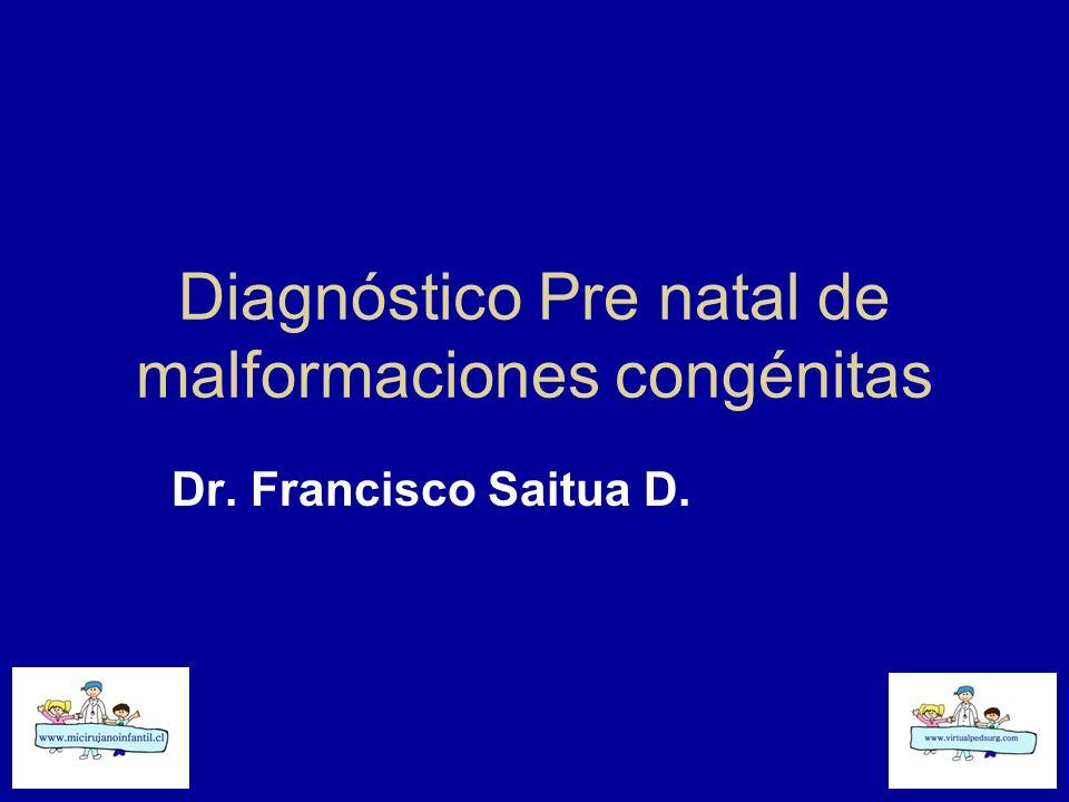 Diagnóstico Pre natal de malformaciones congénitas