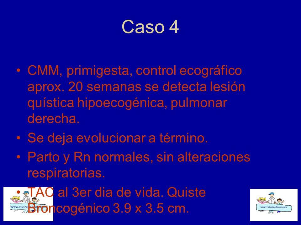 Caso 4 CMM, primigesta, control ecográfico aprox. 20 semanas se detecta lesión quística hipoecogénica, pulmonar derecha.
