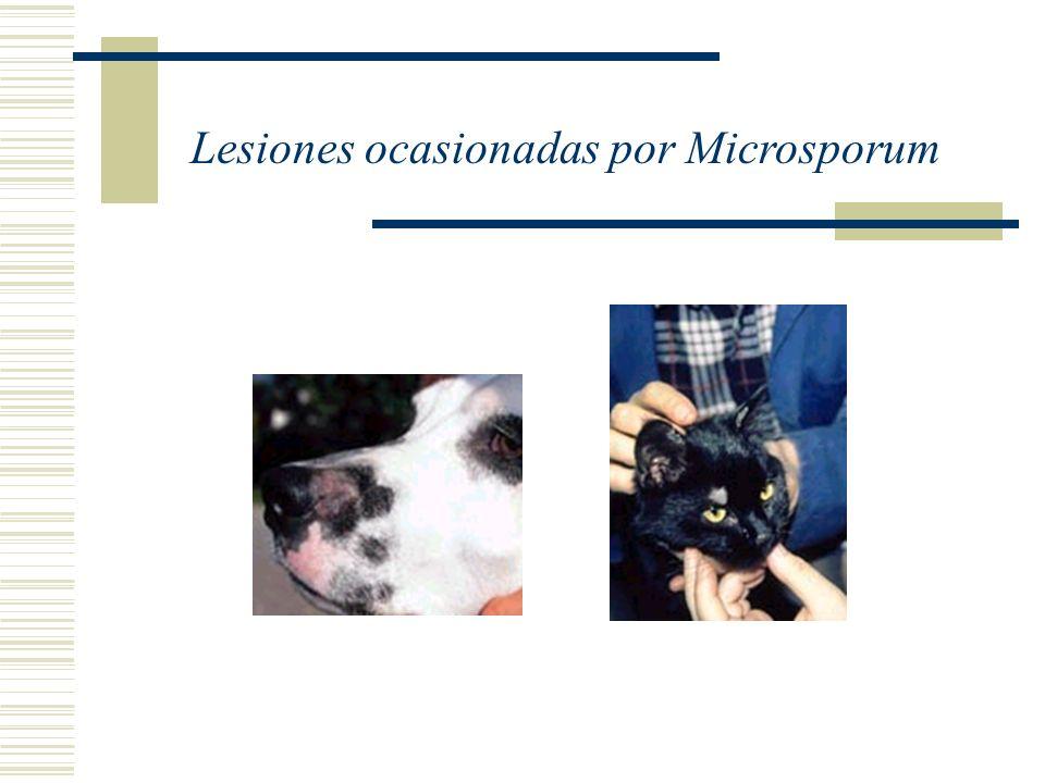 Lesiones ocasionadas por Microsporum