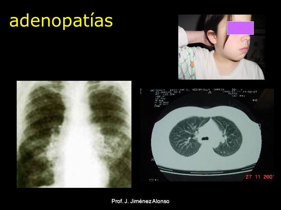 adenopatías Prof. J. Jiménez Alonso