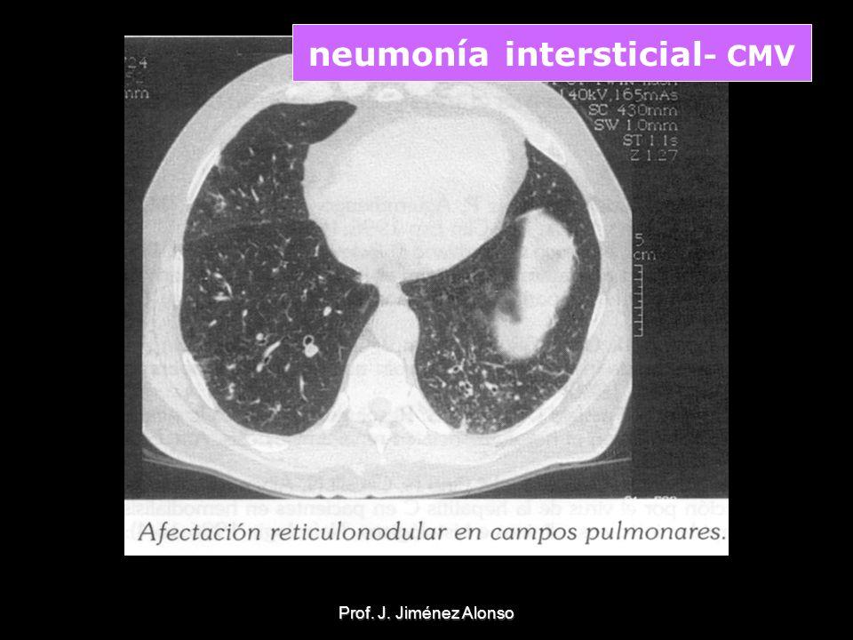 neumonía intersticial- CMV