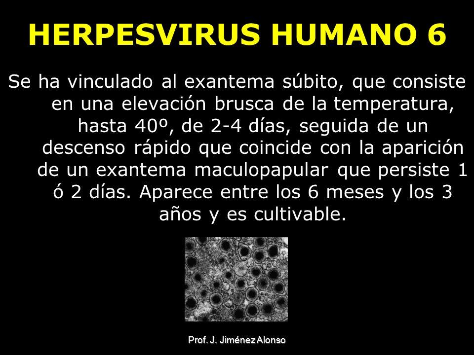 HERPESVIRUS HUMANO 6