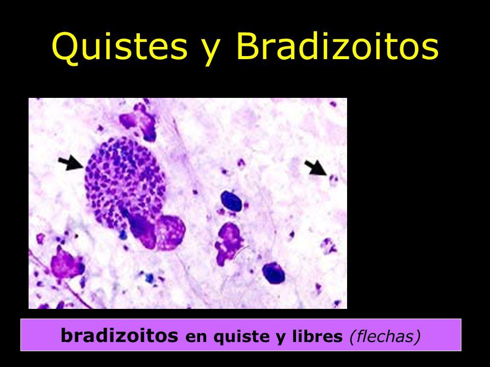 bradizoitos en quiste y libres (flechas)