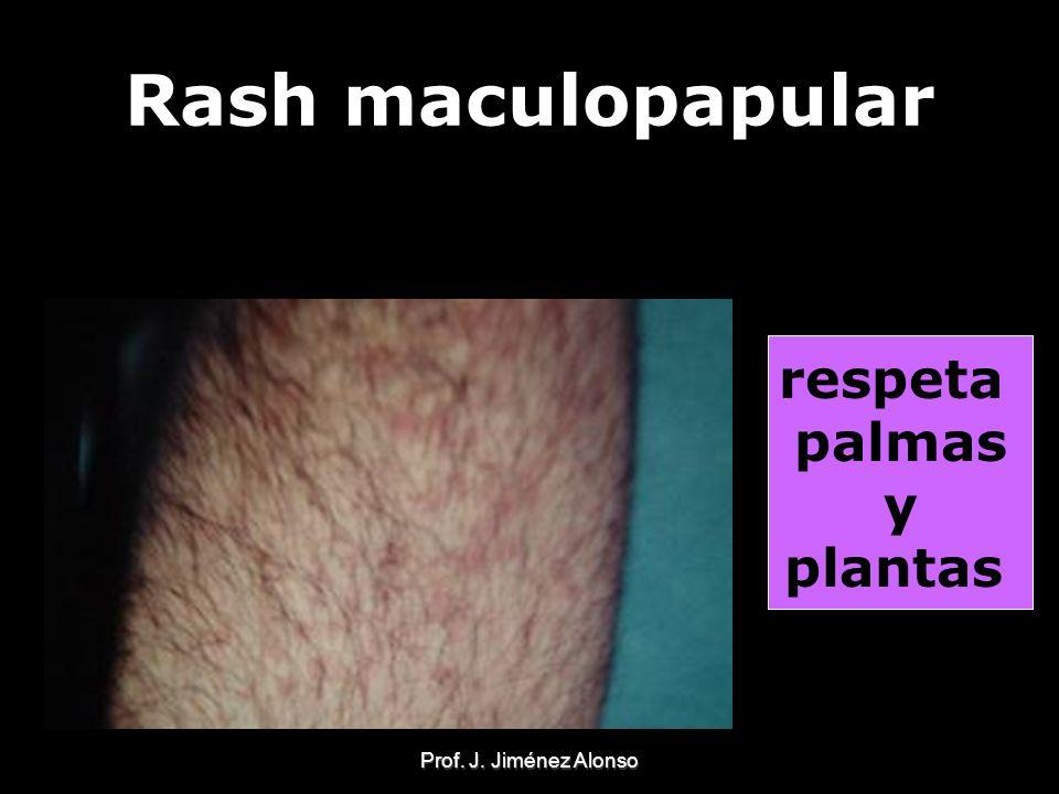 Rash maculopapular respeta palmas y plantas Prof. J. Jiménez Alonso