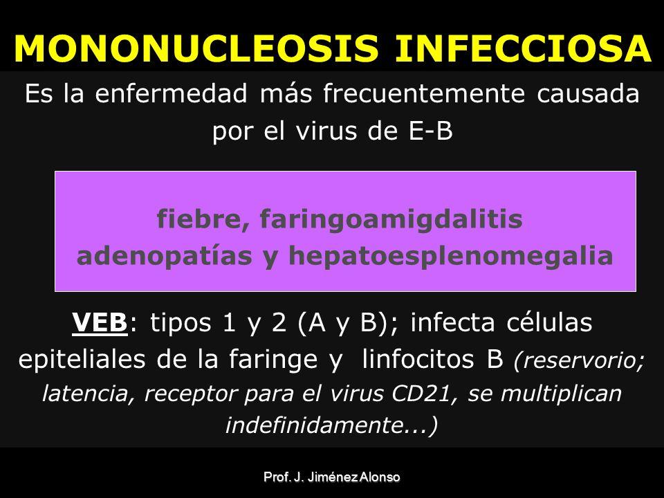 MONONUCLEOSIS INFECCIOSA