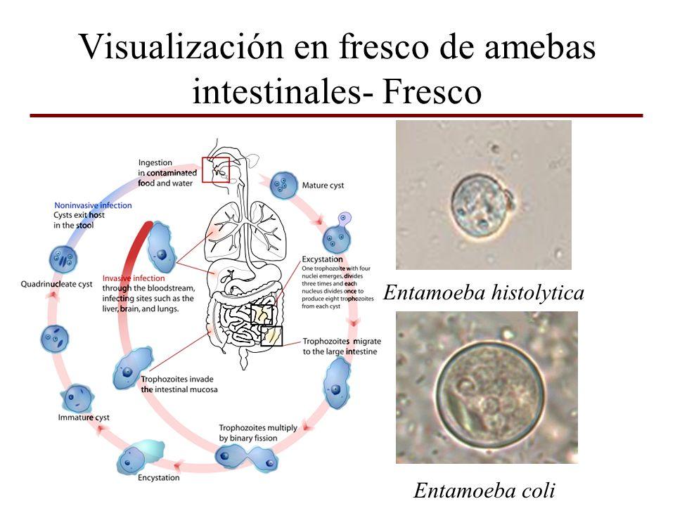 Visualización en fresco de amebas intestinales- Fresco