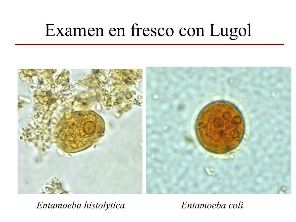 Examen en fresco con Lugol