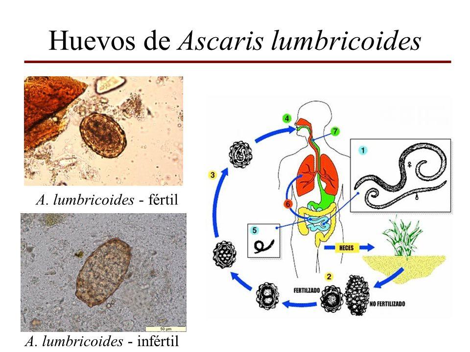 Huevos de Ascaris lumbricoides