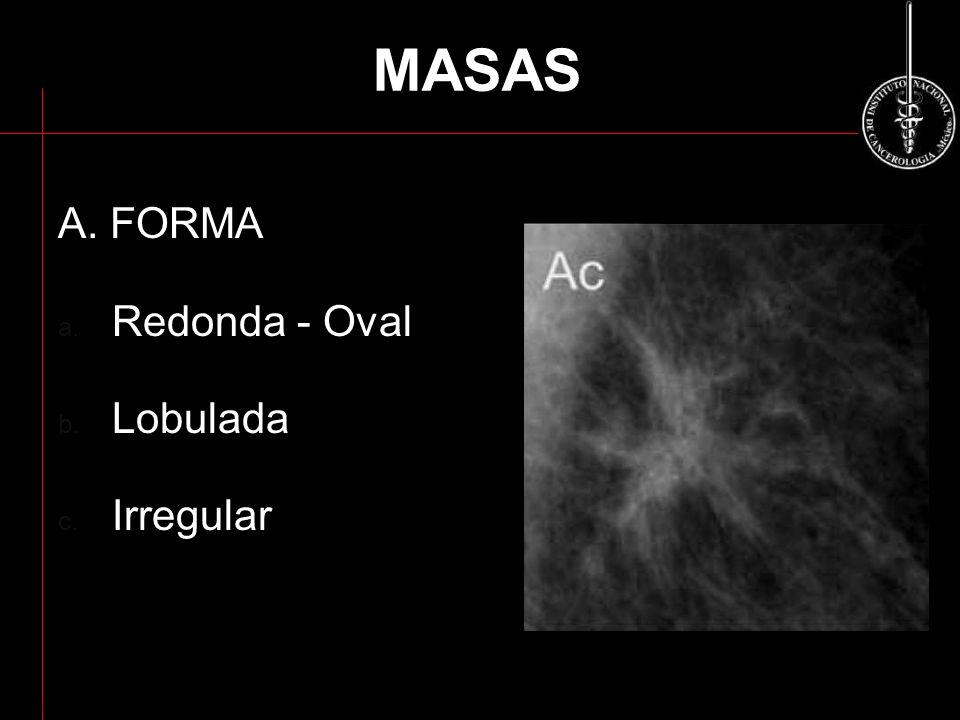 MASAS A. FORMA Redonda - Oval Lobulada Irregular ACR BI-RADS 2003
