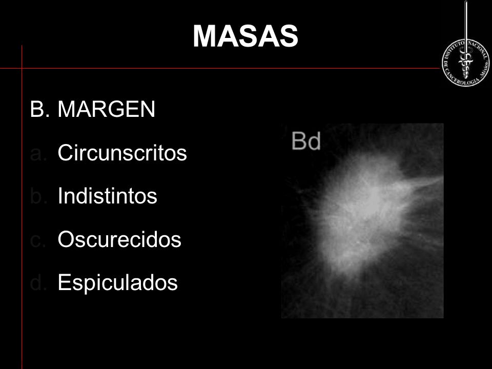 MASAS B. MARGEN Circunscritos Indistintos Oscurecidos Espiculados