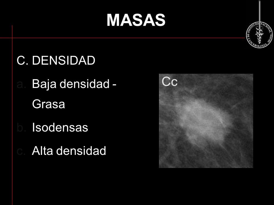 MASAS C. DENSIDAD Baja densidad - Grasa Isodensas Alta densidad