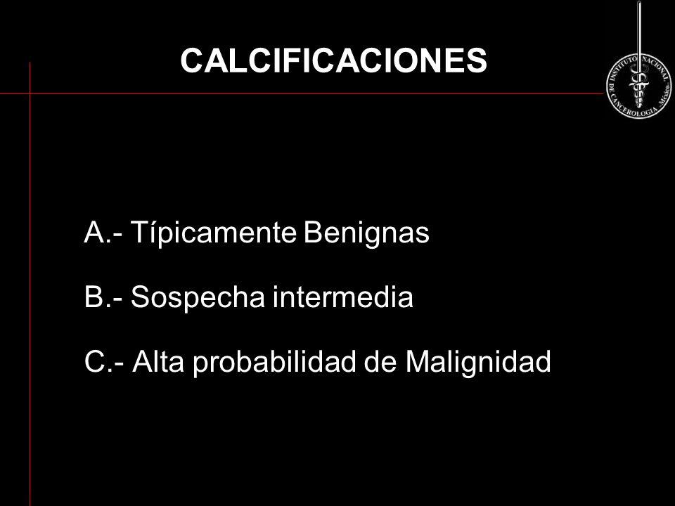CALCIFICACIONES A.- Típicamente Benignas B.- Sospecha intermedia