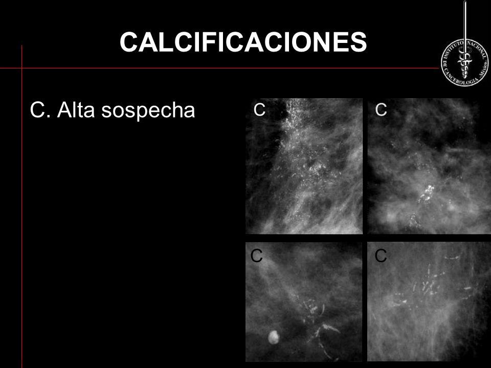 CALCIFICACIONES C. Alta sospecha C C ACR BI-RADS 2003