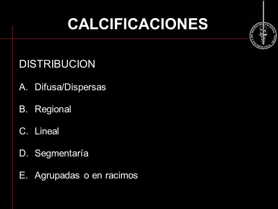 CALCIFICACIONES DISTRIBUCION Difusa/Dispersas Regional Lineal