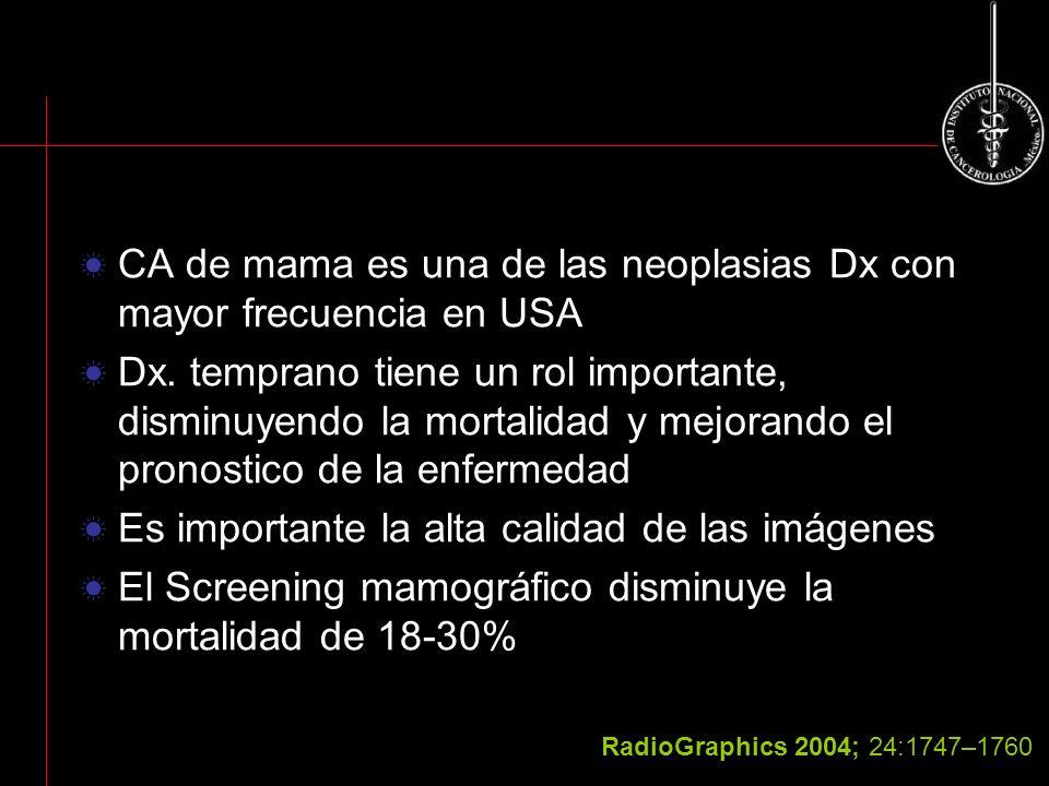 CA de mama es una de las neoplasias Dx con mayor frecuencia en USA