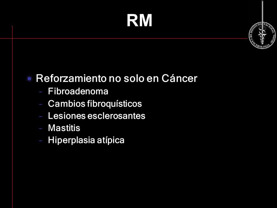 RM Reforzamiento no solo en Cáncer Fibroadenoma Cambios fibroquísticos