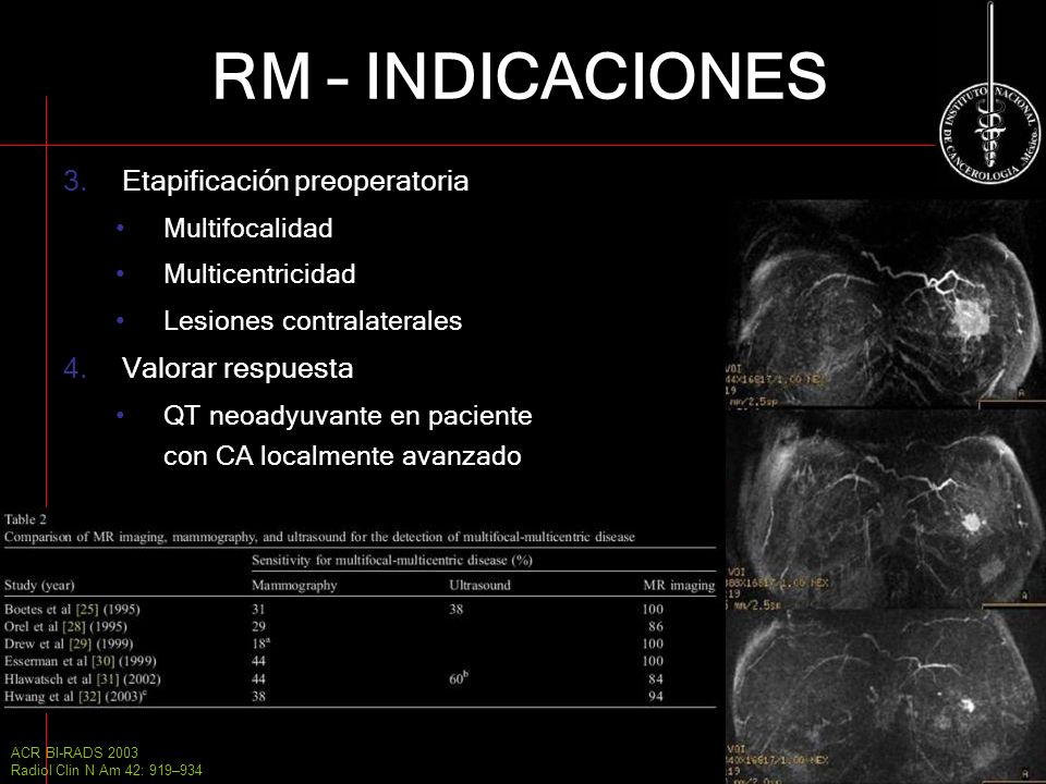 RM – INDICACIONES Etapificación preoperatoria Valorar respuesta